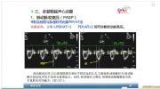 肺动脉高压超声估测方法23
